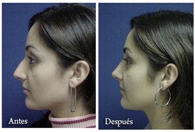 Facial Plastic surgery Tijuana