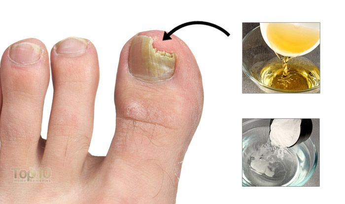 Toenail Fungus Also Known As Onychomycosis Is A Very