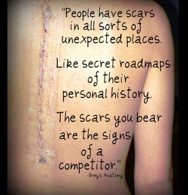 This Seriously Means So Much To Me. A Greyu0027s Anatomy Quote And A Scar From
