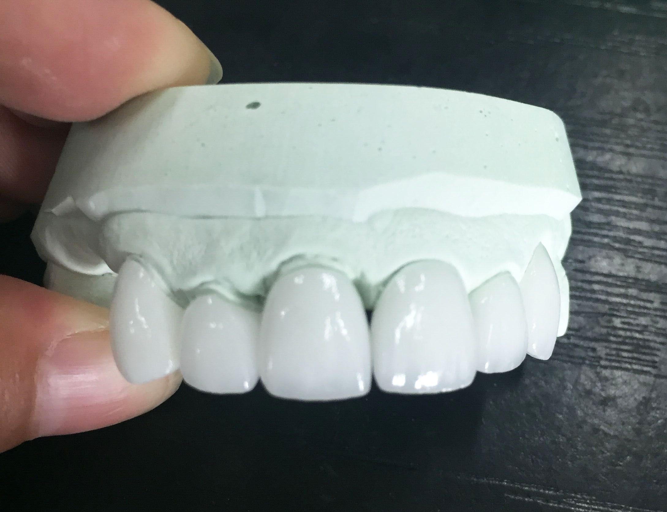 Pin on China dental laboratory