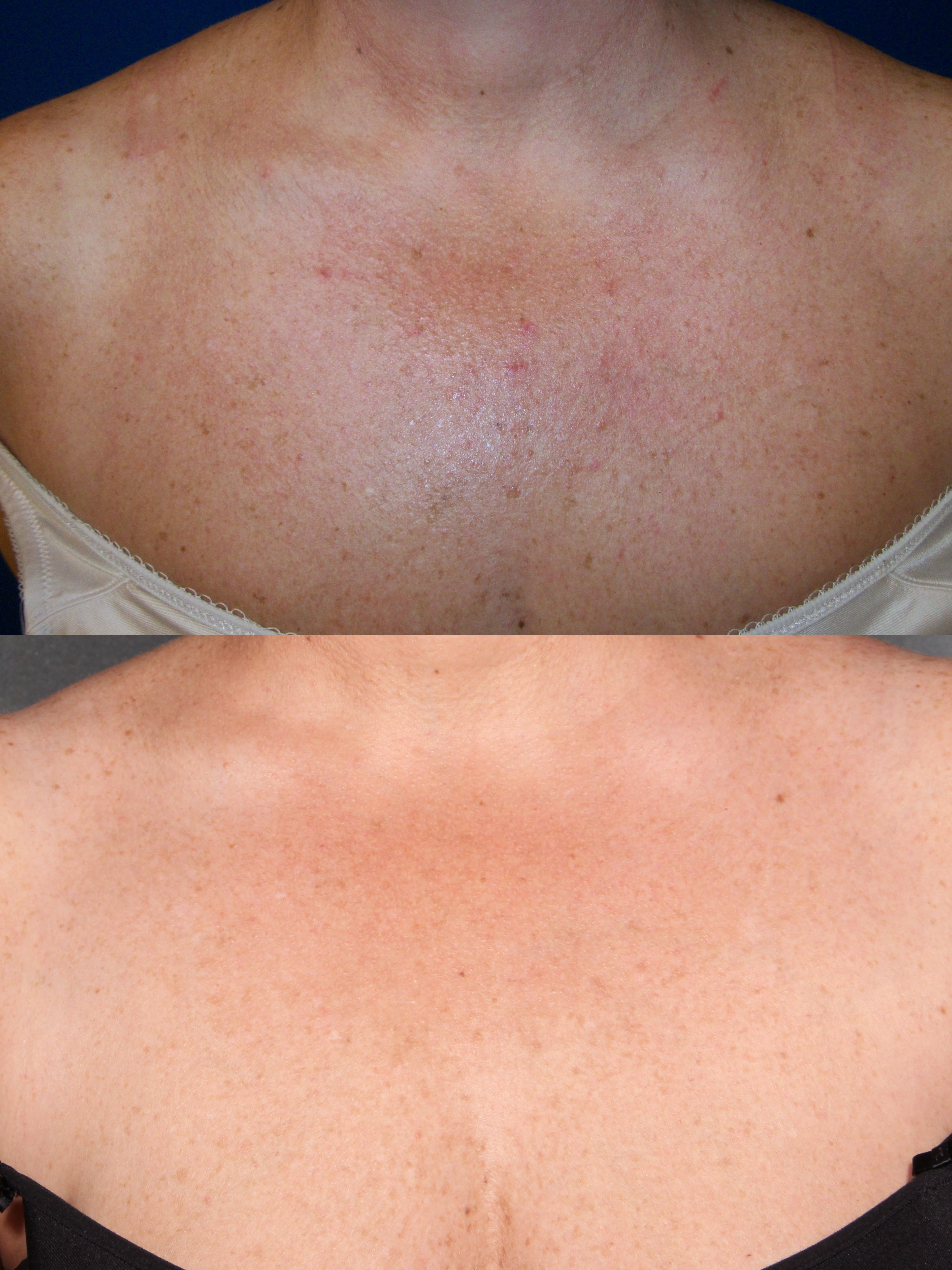 Chest: Photofacial 2 weeks after 4 treatments | Sun Damage