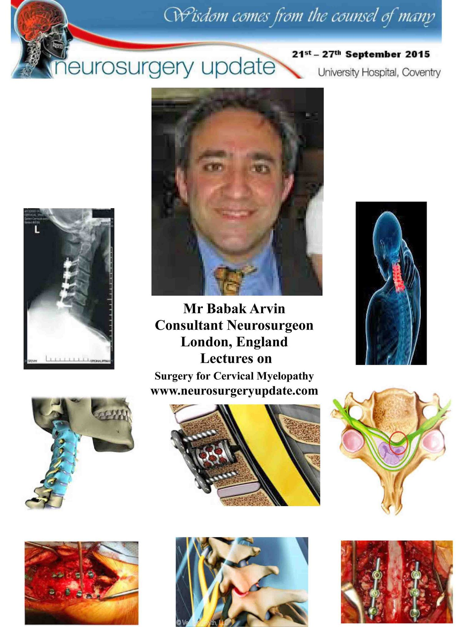 Babak Arvin 2015 Neurosurgery Update | Neurosurgery Update