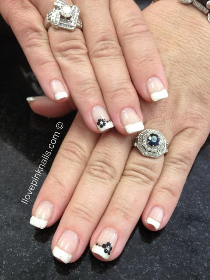 A Lot Of Different Nail Ideas On This Site Awesome Nail Ideas For