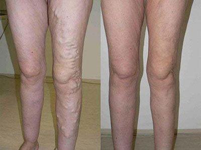 Varicele la picioare: ce sunt, de ce apar și cum le tratăm