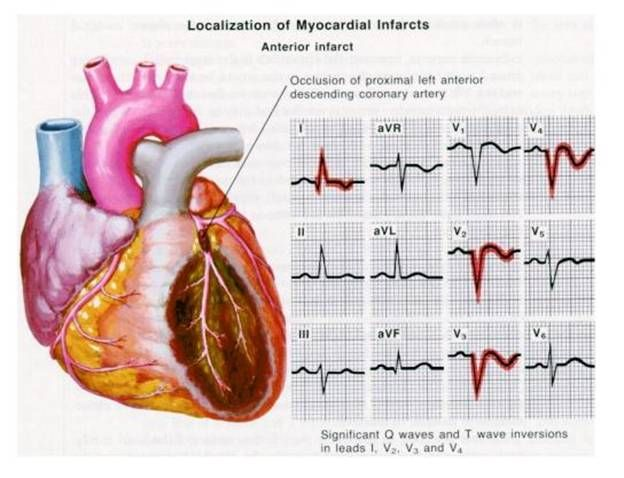 Myocardial infarction - causes, symptoms, investigations | Health ...