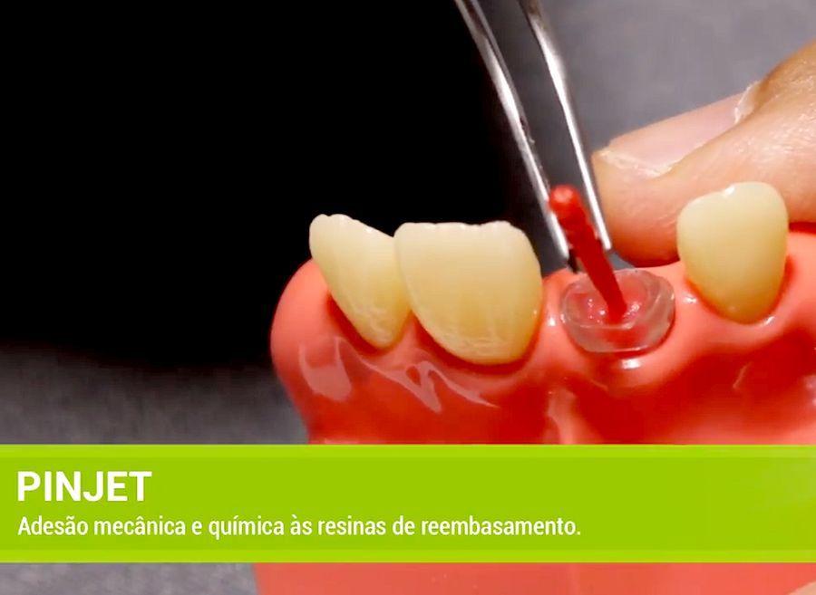 pino-dentario