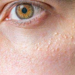 Das kannst du gegen den Hautgrieß tun! | Calcium deposits