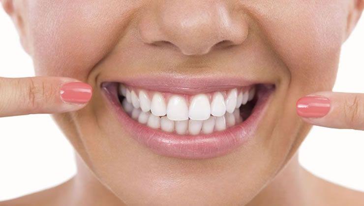 Como Clarear Os Dentes Em Casa Com O Sistema Cdn Clareamento