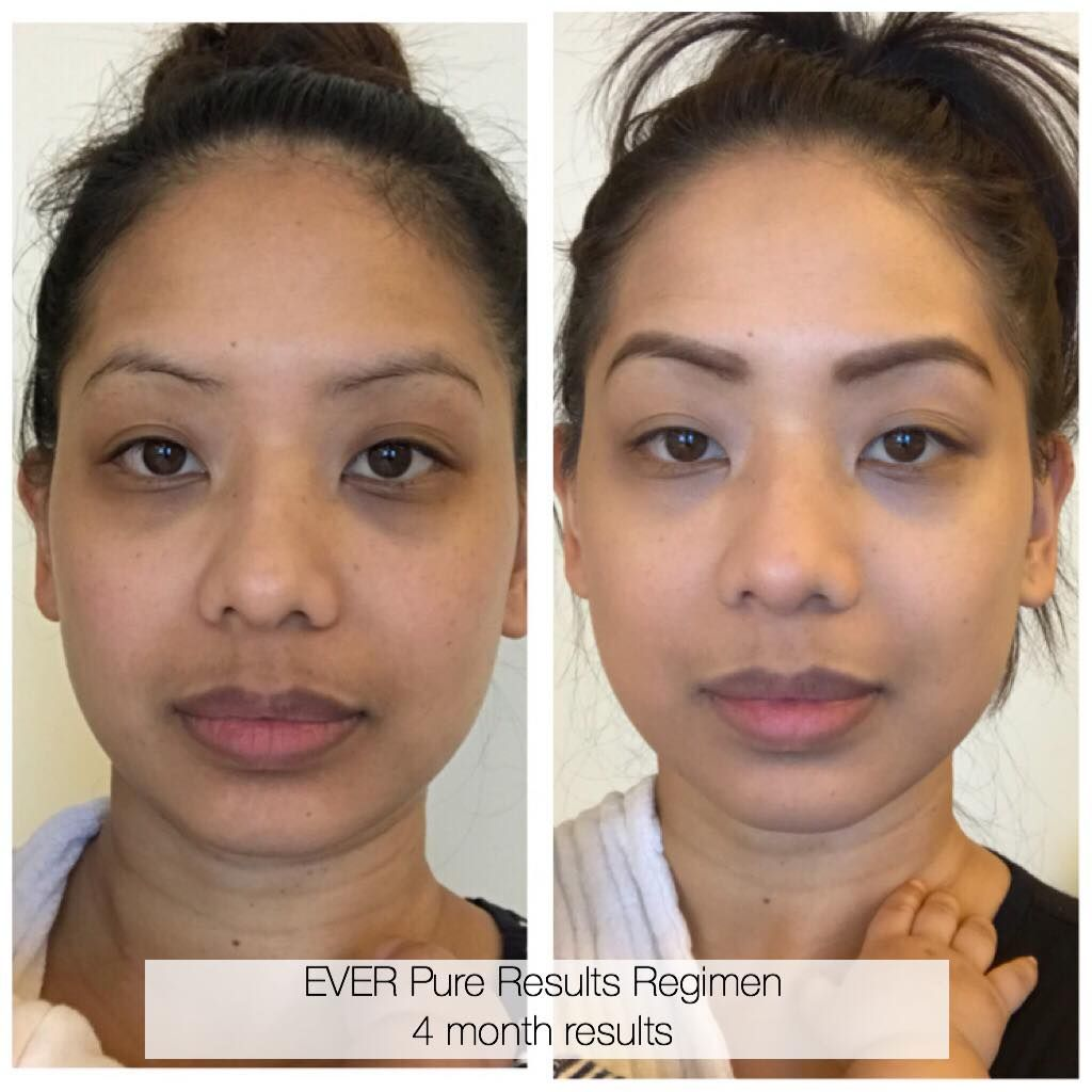 New mama has dramatic results while using the pure results