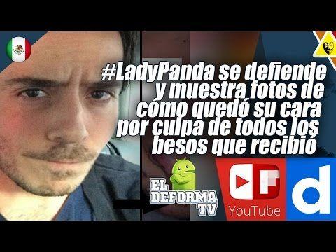 21 #LadyPanda se defiende y muestra fotos de cómo quedó su cara por culp...