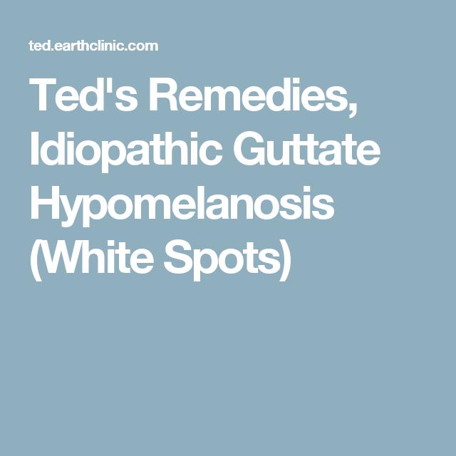 Ted S Remedies Idiopathic Guttate Hypomelanosis White