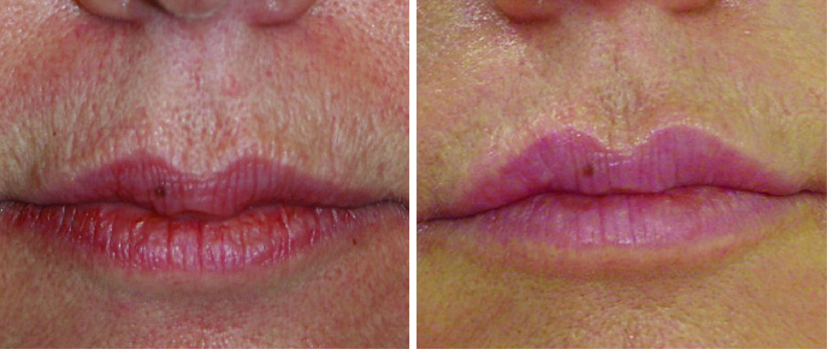 Perioral Wrinkles gone with laser resurfacing
