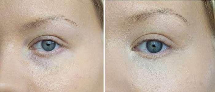 How to conceal dark circles under eyes - Concealer tips - Charlotta Eve #darkcircle