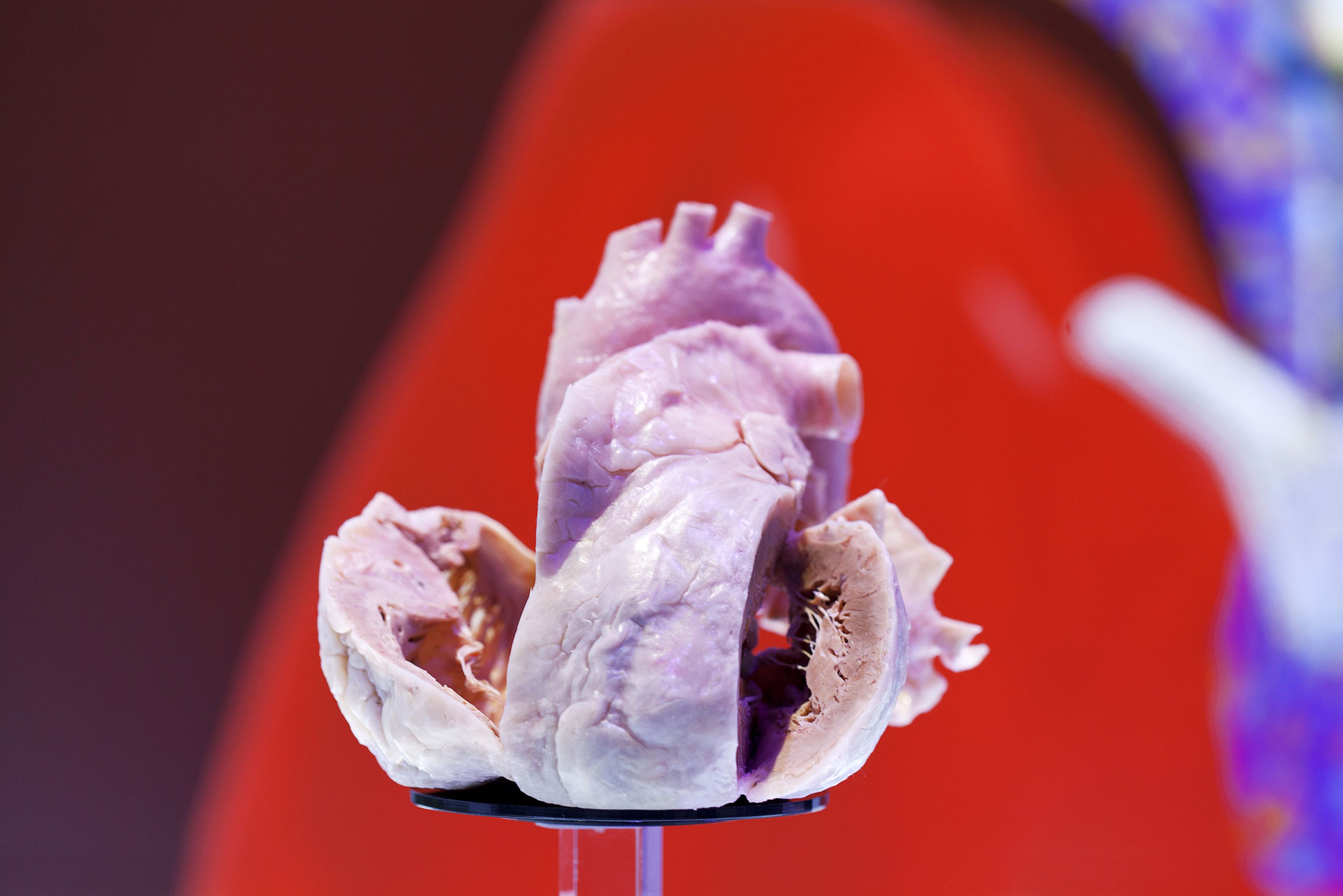 Heart attack patients who received one-fourth of the ...