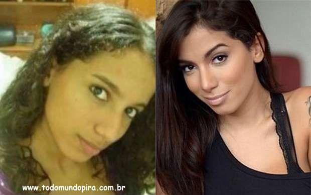 Anitta é uma que mudou bastante depois da cirurgia - Reprodução