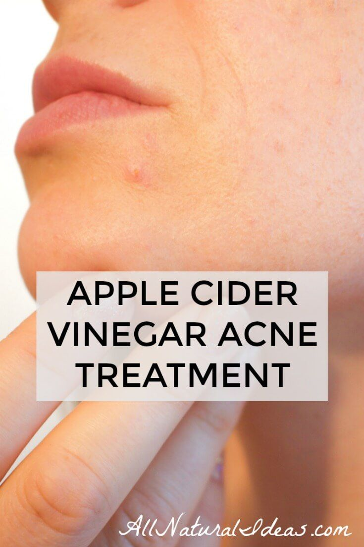 Folk remedy for acne at home 47