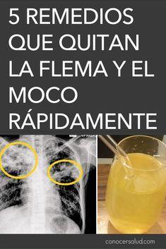 porque te sacan agua de los pulmones