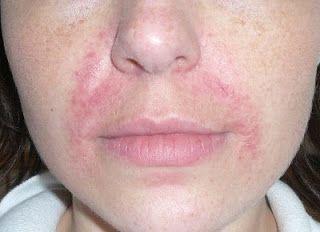 Periorale Dermatitis Oder Warum Ich Avene So Liebe Stewardessen
