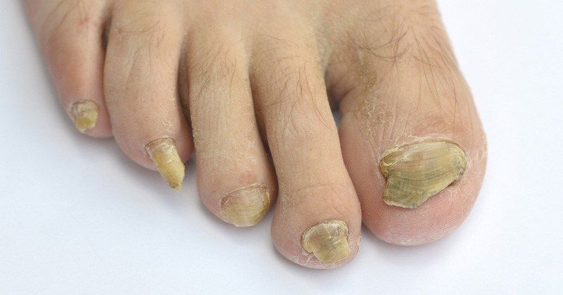 Home remedies to get rid of yellow nails and nails fungus
