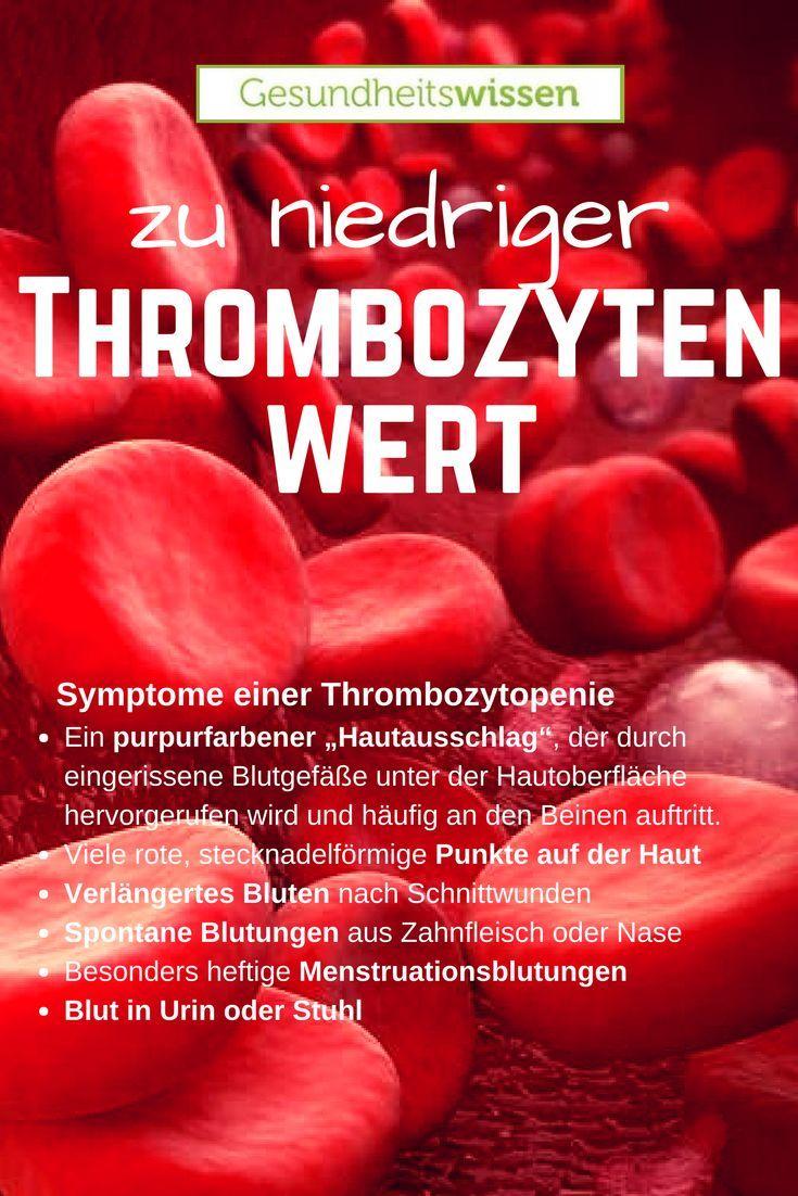 Thrombozytopenie nennt man den Zustand wenn ein Mensch zu wenig ...