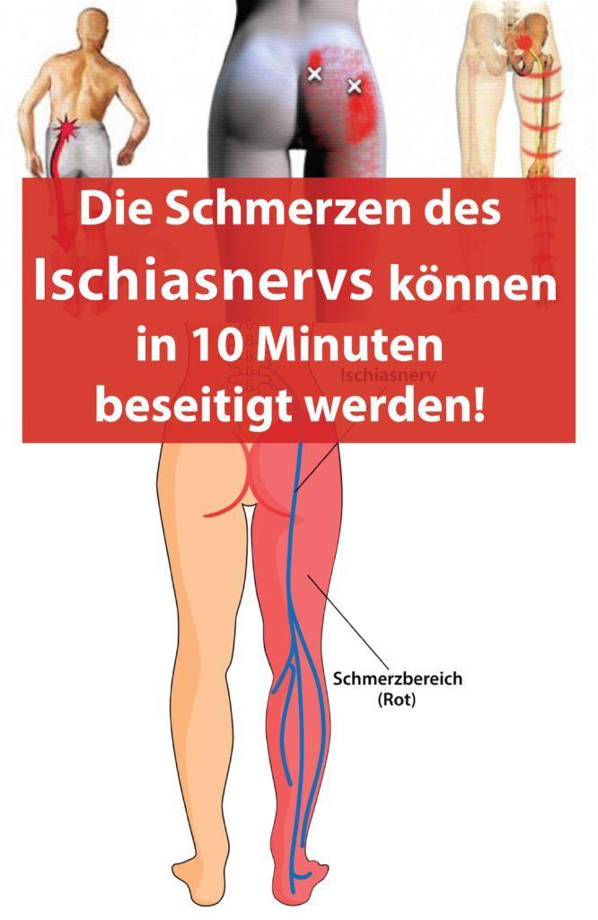 Die Schmerzen des Ischiasnervs können in 10 Minuten beseitigt werden! #tippsundtricks