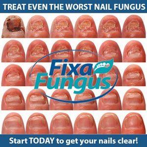 Fungus Medicine   Nail Fungus   Pinterest   Nail fungus