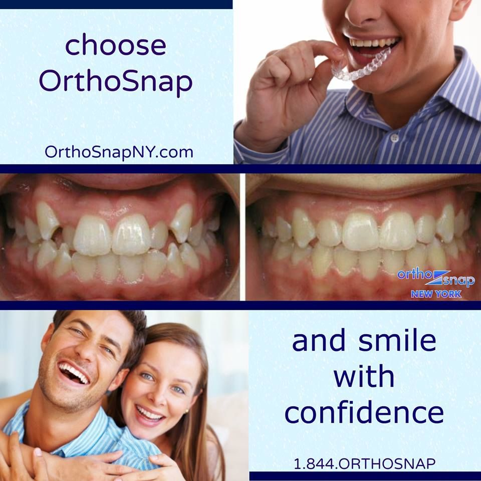 OrthoSnap convenient, invisible, affordable