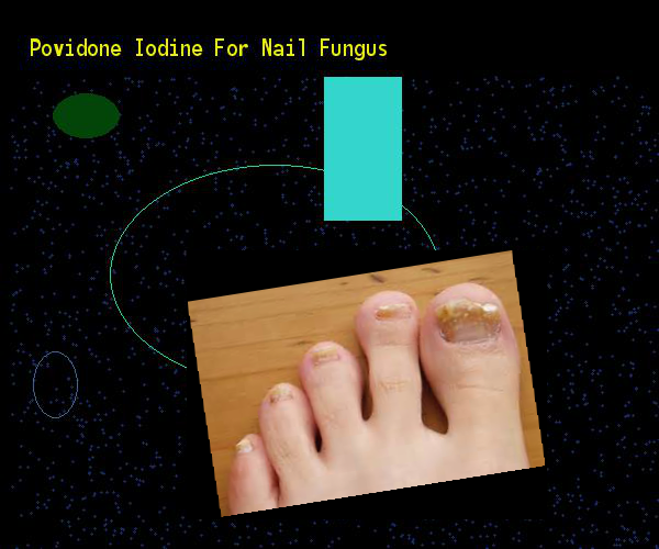 Povidone Iodine For Nail Fungus Remedy You Have Nothing To Lose Visit Site Now