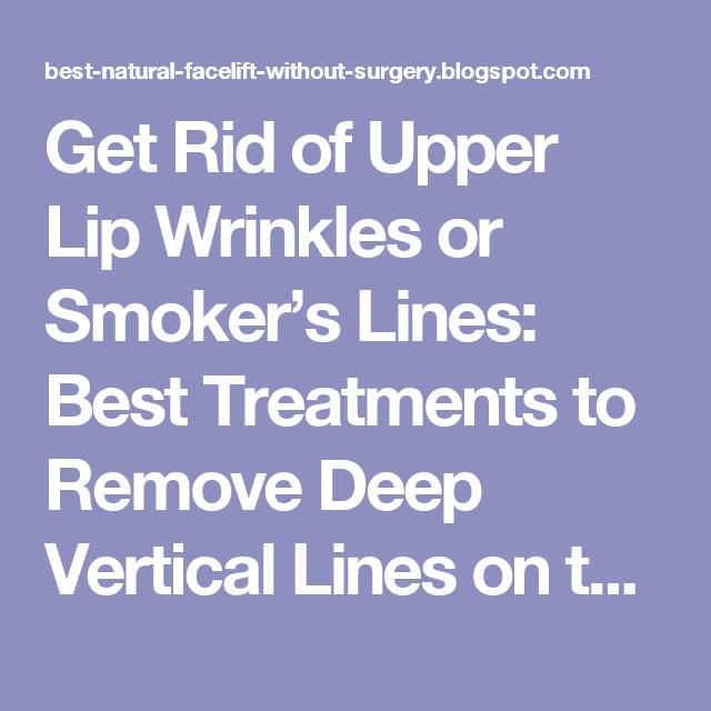 4e0dc527f5f5f96315c68303d7c07b55 - How To Get Rid Of Deep Wrinkles On Upper Lip
