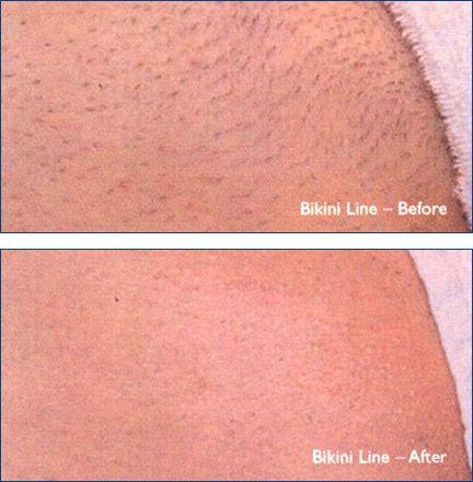 Brazilian Wax | Brazilian wax photos | Beauty | Bikini wax, Wax