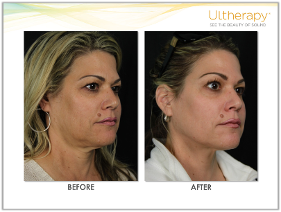Ultherapy results on the neck and under the chin  #NeckLift