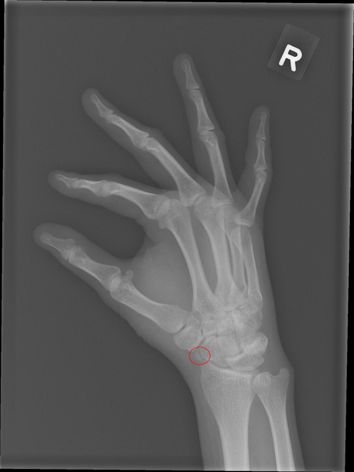 Xray Pictures Of Broken Bones