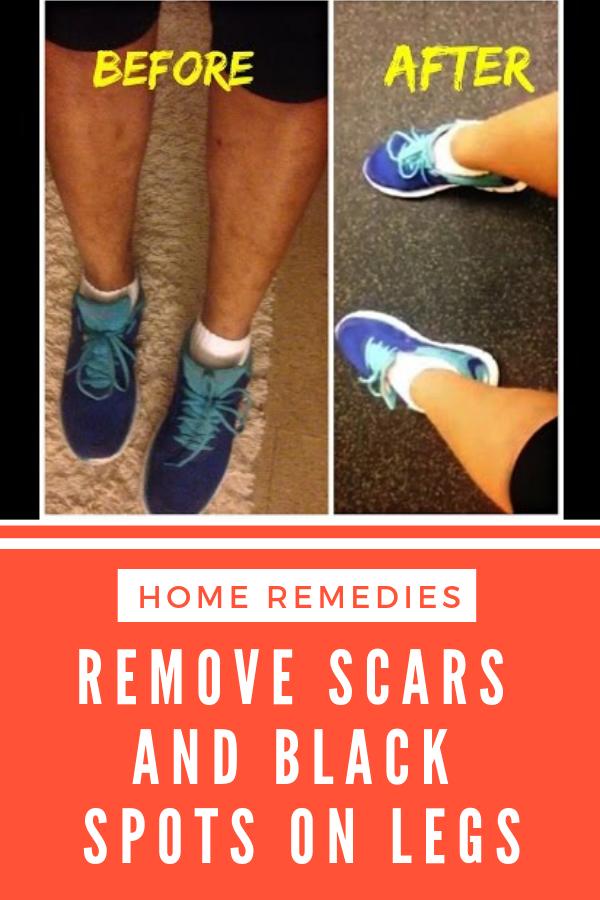 4e1f949211e485b6daae5721a1689fcd - How To Get Rid Of Blue Marks On Legs