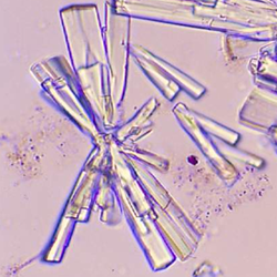 Calcium phosphate crystals are normal in urine Appearance ...