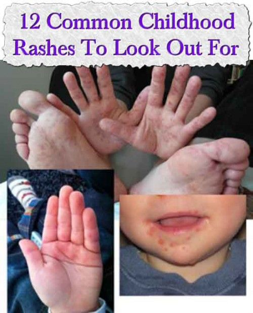 12 Common Childhood Rashes To Look Out For | Remedies