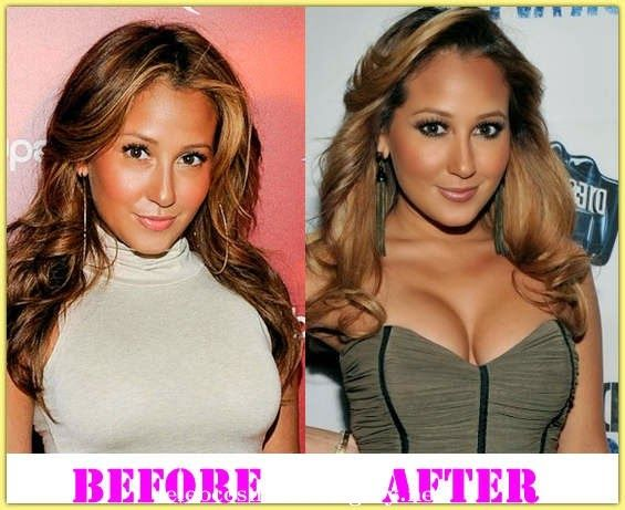 E Breast Implants Before And After Adrienne Bailon Breast...