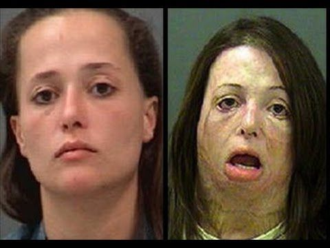 METH ADDICTS BEFORE AND AFTER PHOTOS DRUG ADDICTION