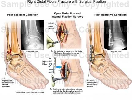Distal Fibula Ankle Fracture | Right Distal Fibula Fracture with Surgical Fixation - Medical ...