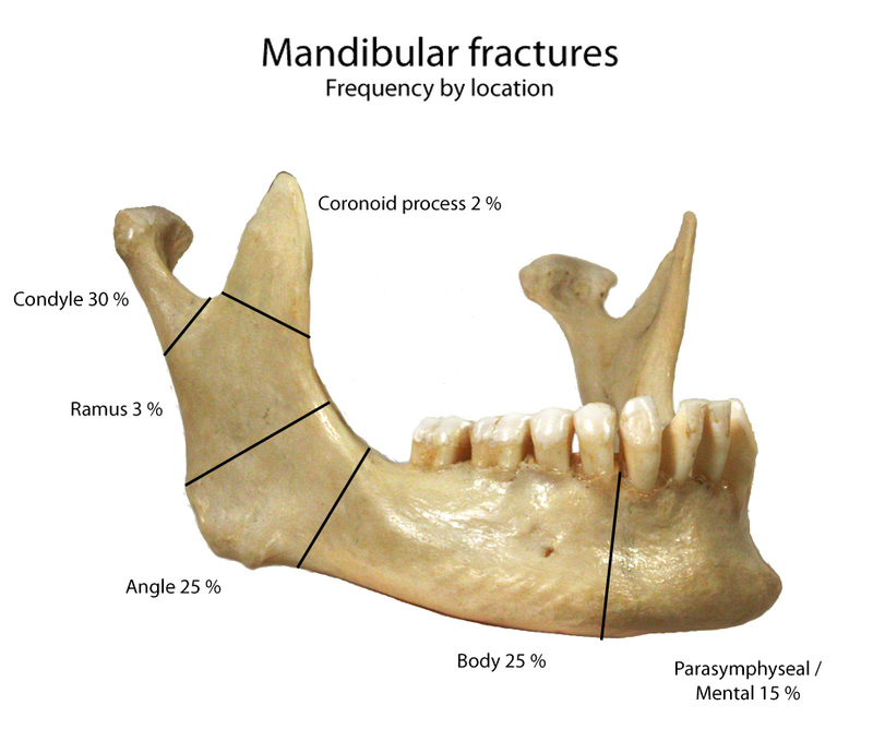 Mandible Bone Mandibular Condyle Coronoid Process Mental Foramen