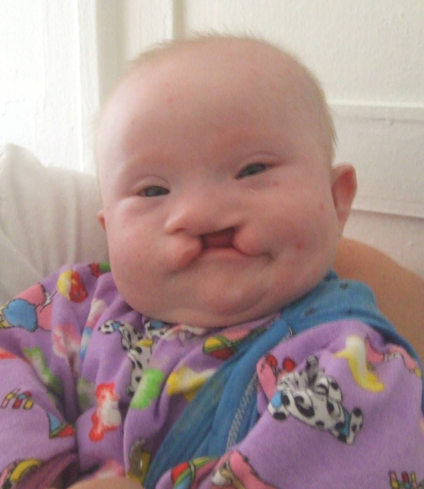 Kids with Down Syndrome find a unusual name for your new baby