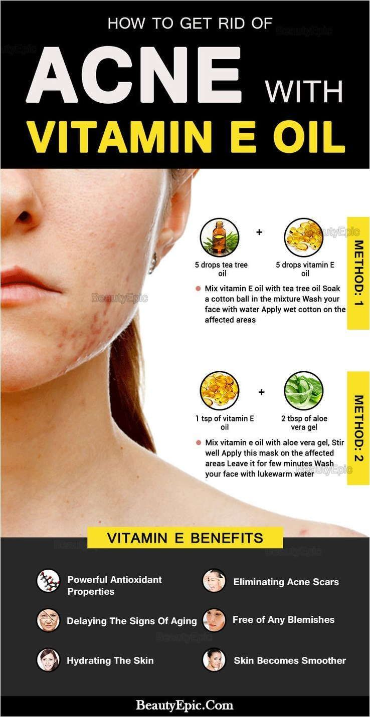 Get Rid Of Pimples Quickly With These Tips Health And Skin Care In 2020 How To Get Rid Of Acne Natural Acne Natural Acne Remedies