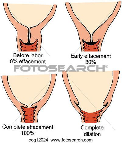 Image result for cervical effacement medical illustrations image result for cervical effacement ccuart Gallery