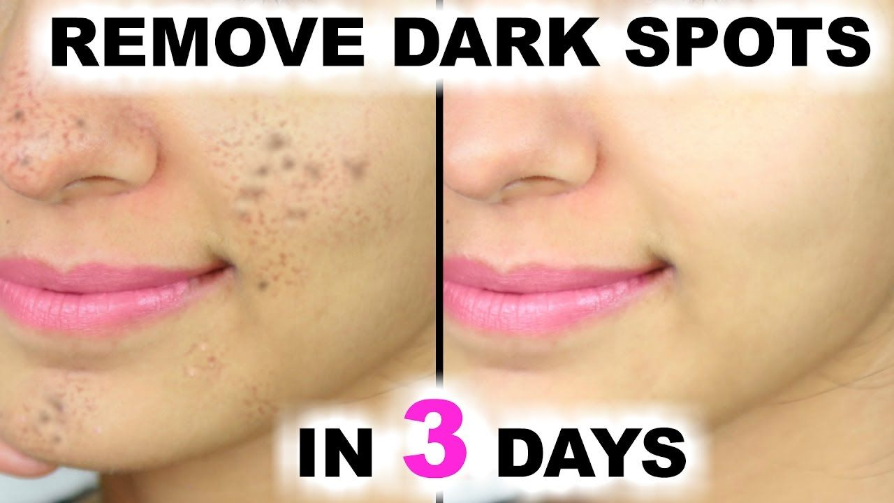 How to remove black dots 20