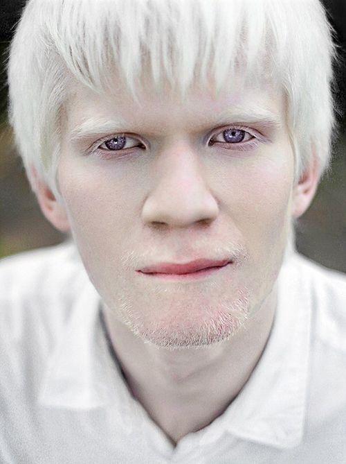 by Anastasia Romashkan | New albino model - Amal Sofi from ...