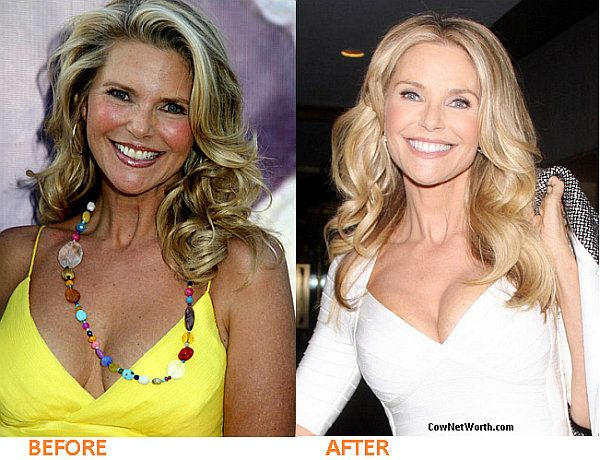 Christie brinkley plastic surgery are not