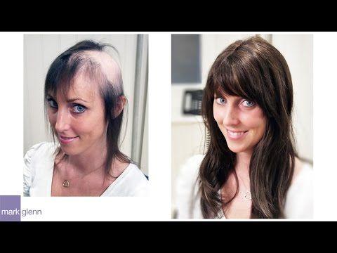 Female Hair Loss Solution Mark Glenn Hair Enhancement London