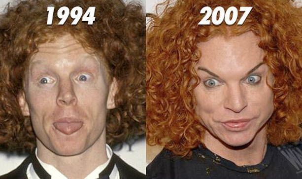 worst cases of plastic surgery gone wrong photos by whose