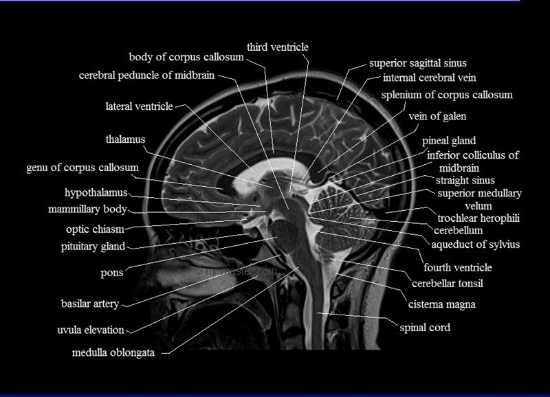 Mri Sagittal Cross Sectional Anatomy Of Brain Image 12 Sahid