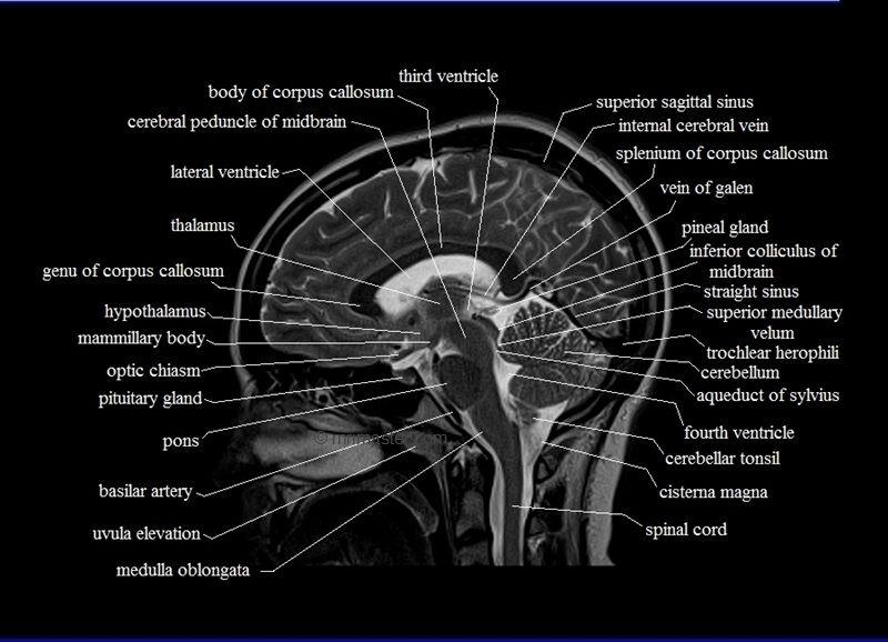 mri sagittal cross sectional anatomy of brain image 12 | sahid ...