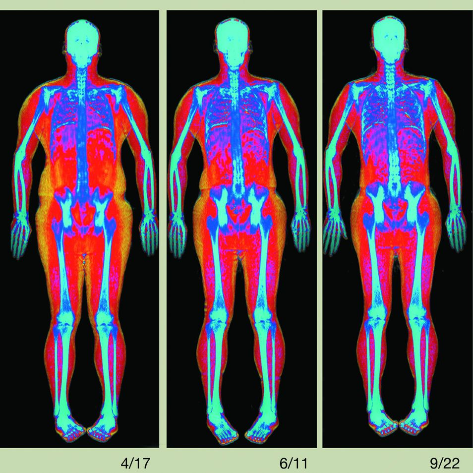 Too Much Fat? Try a Whole-Body Scan   Body composition